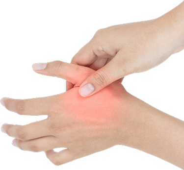 Chiropractic Fort Myers FL Neuropathy in Hand